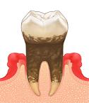 歯周病(重度)