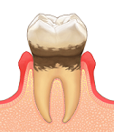 歯周病(経度)
